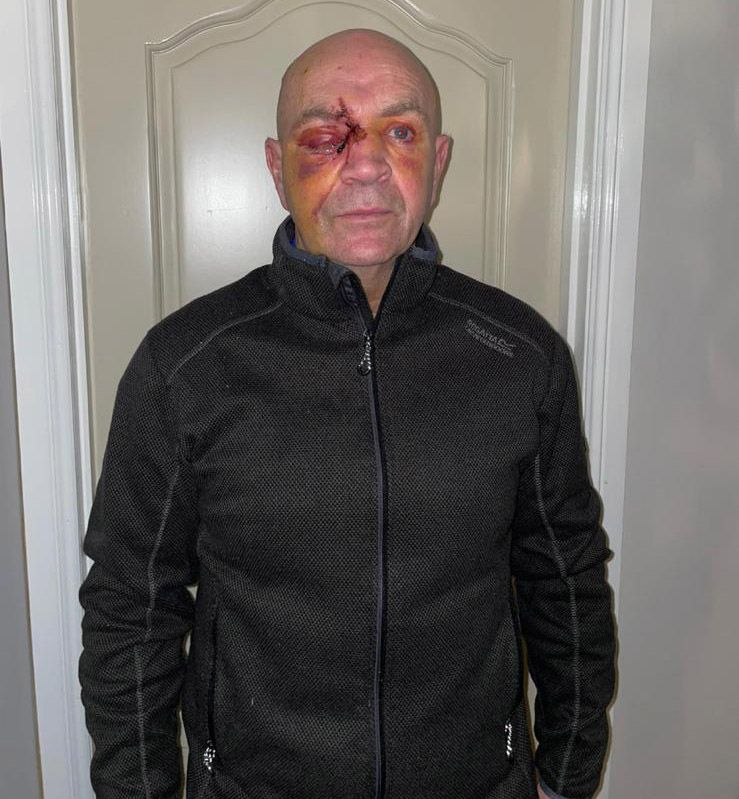INJURIES: Lorry driver Fra McCaffrey after the attack