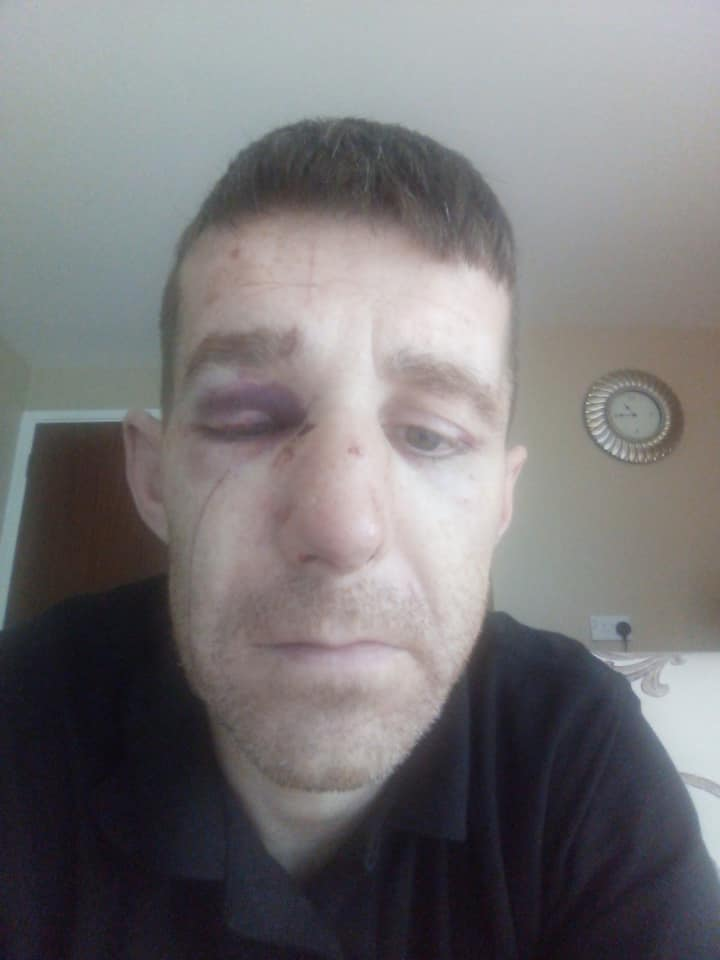VICTIM: Gavin Rooney (37) after the attack
