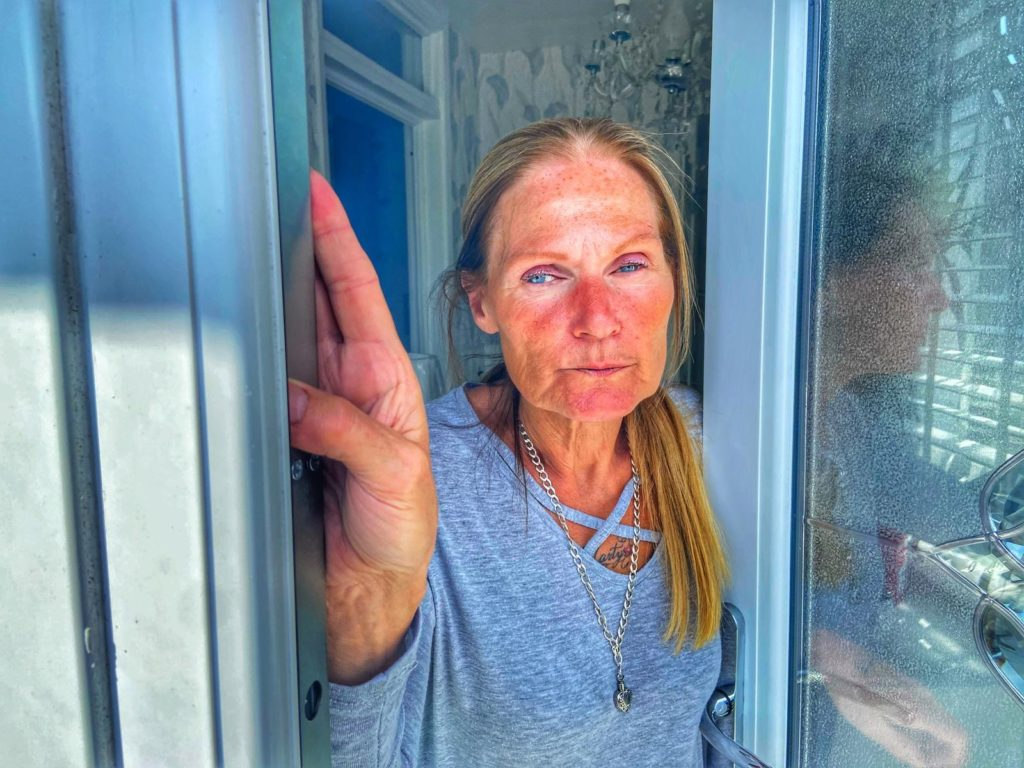 BATTERED: Lorraine Kavanagh recounts savagery of attackers behind home incursion